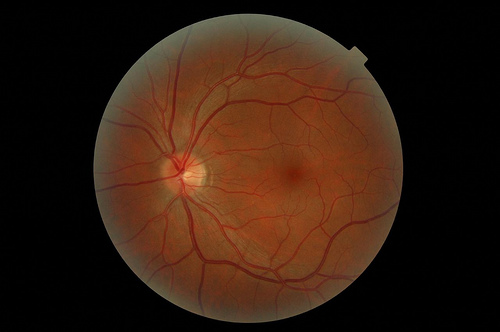 Retina blindness symptoms could be alleviated with prosthetic devices